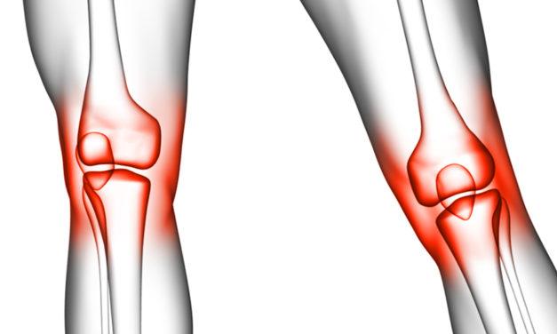 Sport- und Freizeitverletzungen des Kniegelenks